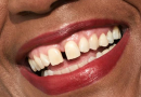 Avez-vous un espace entre vos dents Découvrez ce que cela signifie